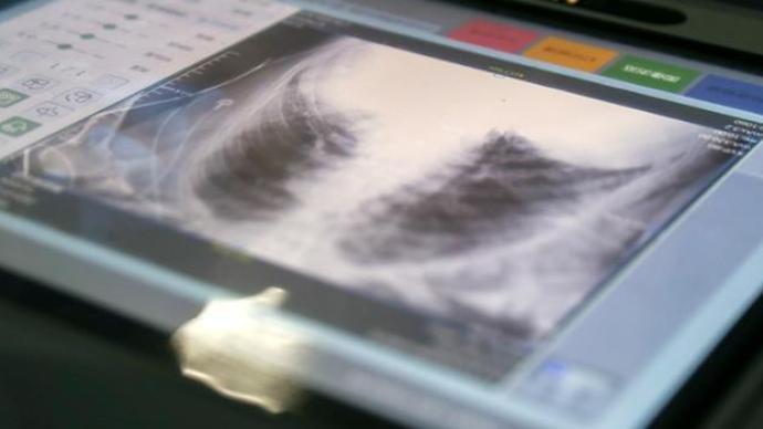 目前吉林通化市共有危重型病例15例,新增死亡病例为87岁患者