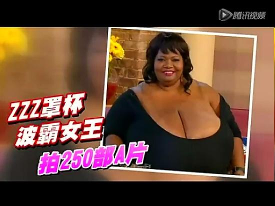 美国女子胸部重达39公斤
