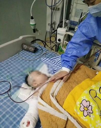 宁波一烧伤女婴换纱布时被剪断小拇指 院方:已处罚医生