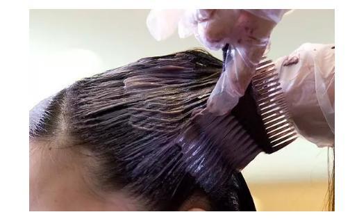 女子每月染发患肝硬化 染发的人一定要注意这些