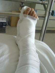 女子骨折手术去世 医院对术后治疗存在明显不足