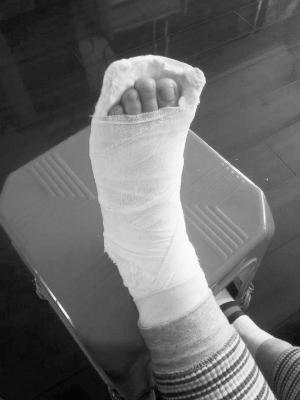 女子骨折手术去世 这个结果家属不能接受现医院已被判定有过错