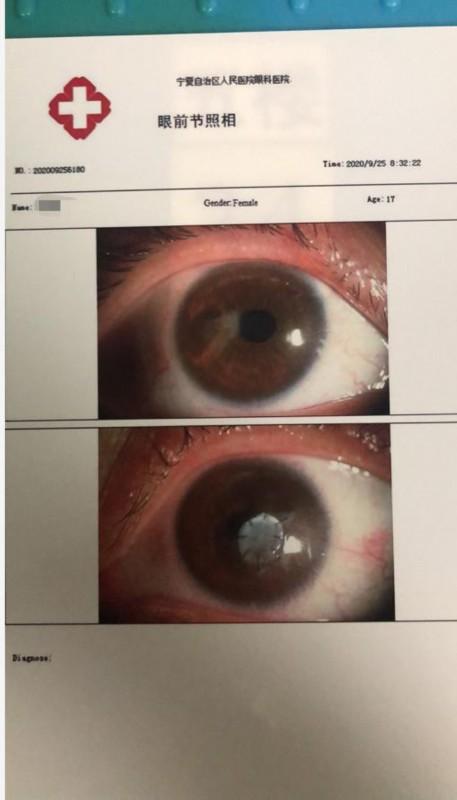 警惕丨宁夏17岁女孩眼睛长螨虫,眼角膜穿孔,视力几乎丧失